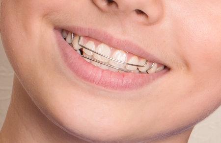Herausnahmbare Zahnspange - Praxis Dr. Rosenstiel