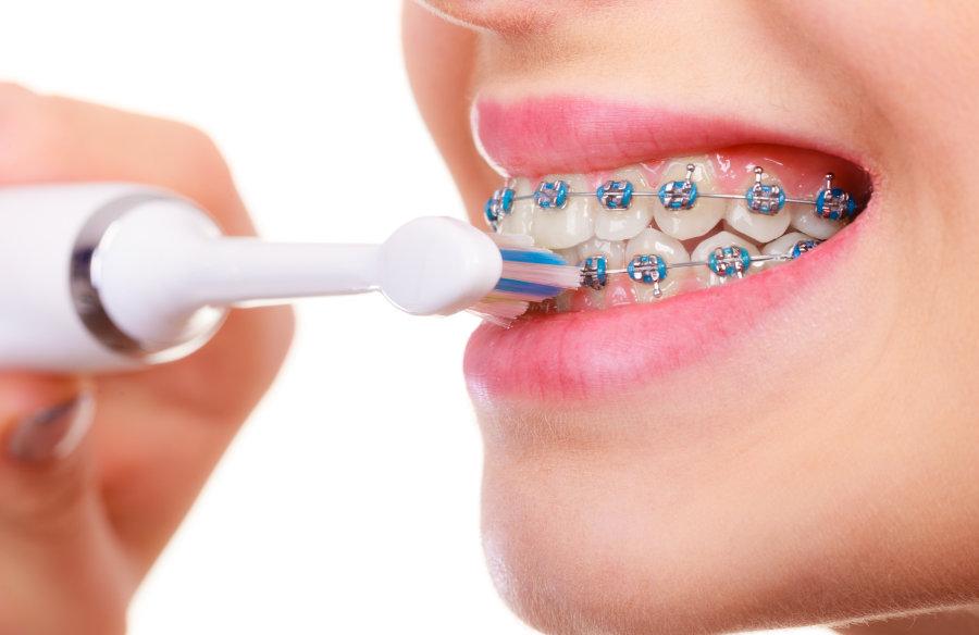 Frau mit Brackets und elektrischer Zahnbürste