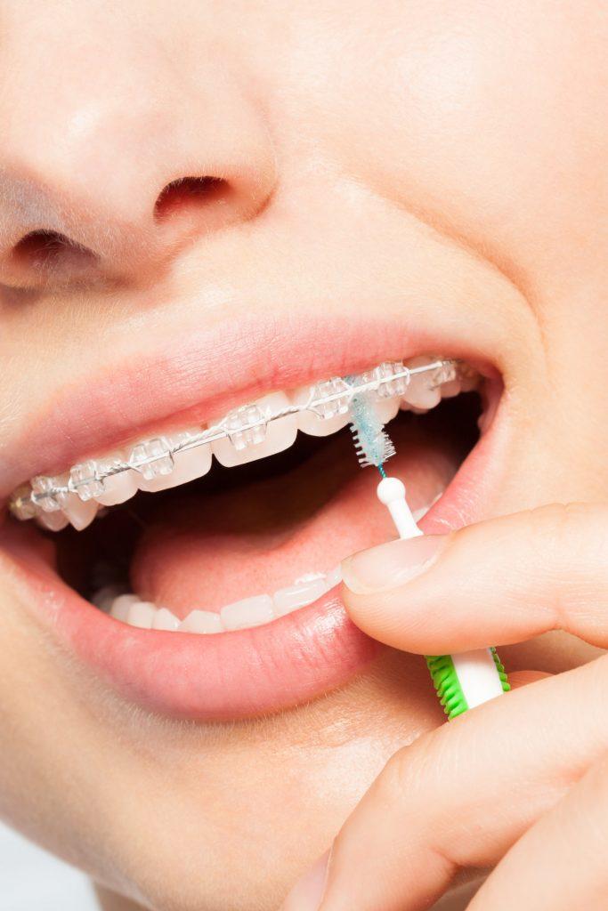 Mundhygiene - Praxis Dr. Rosenstiel